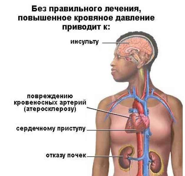 Гипертония: признаки, симптомы, лечение. Как лечить ...